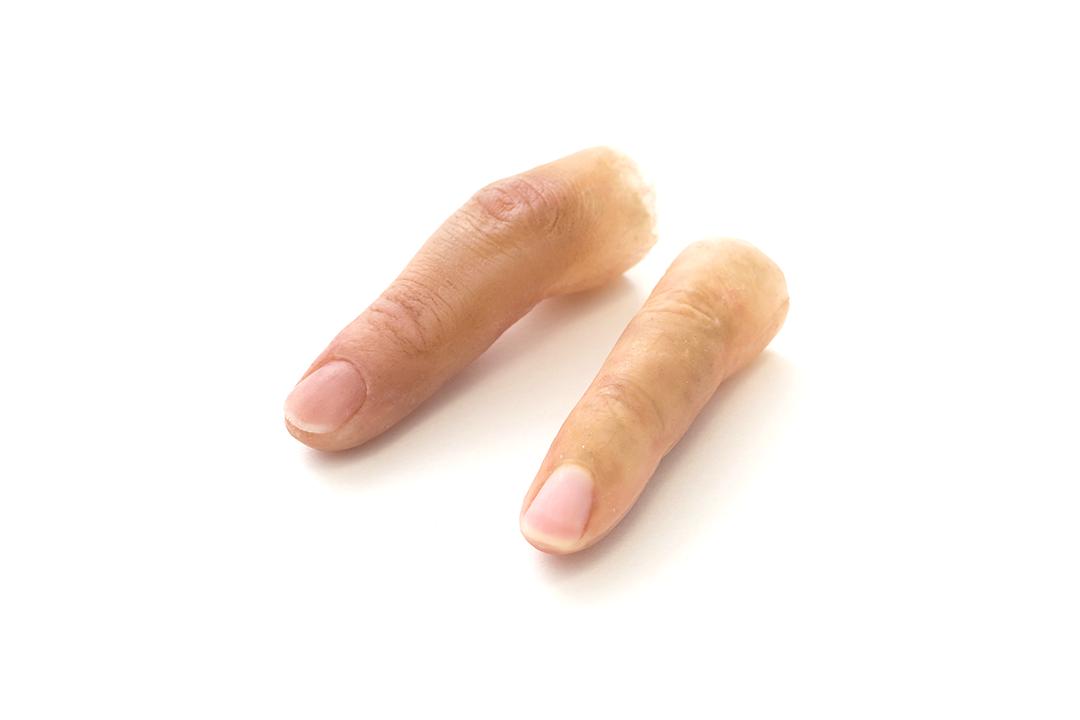 シリコーン手指義手